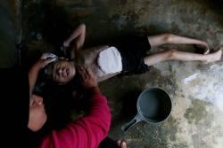 BATU PAHAT 04 April 2015. Norlanda Sahran ketika memandikan anaknya Muhmad Iezad Mohamed Rosli ,12 yang menghidap Sindrom Edward akibat radiasi pengimejan resonan magnetik (MRI) semasa dalam kandungan ibunya 2 bulan dirumahnya di Parit Shukur, Batu Pahat. Foto Syarafiq Abd Samad